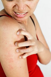 Chlorine Itchy Skin